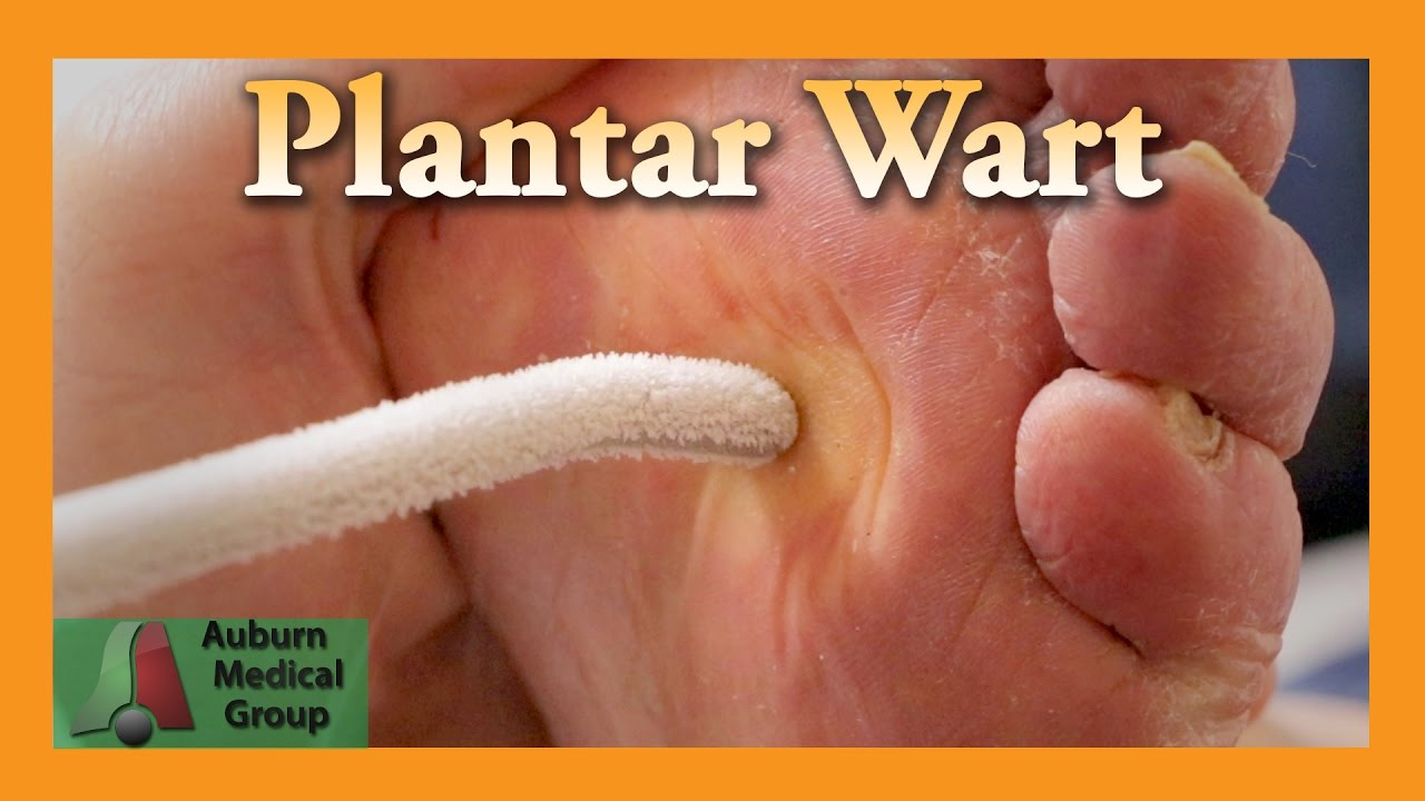 wart on foot medicine