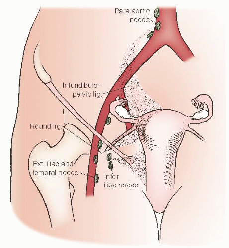 endometrial cancer lymphatic drainage)