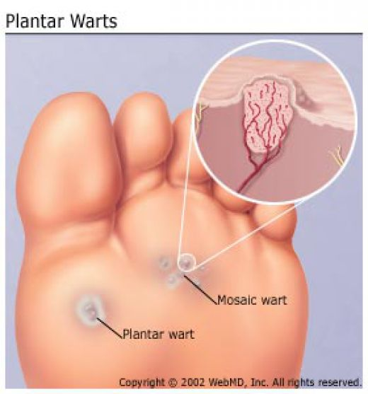 foot wart treatment singapore