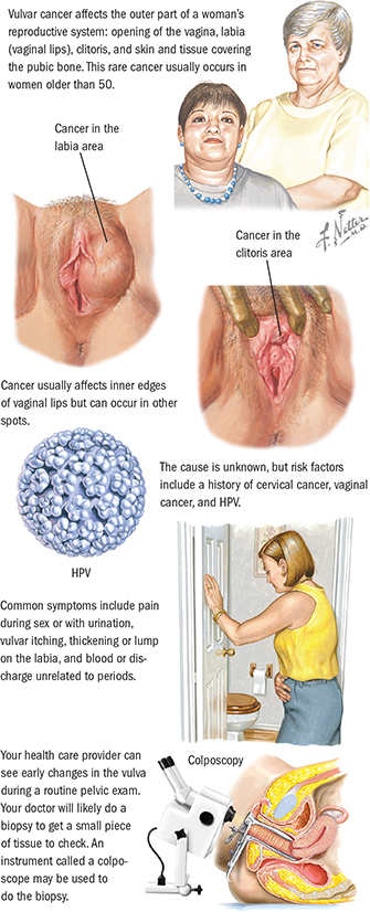 hpv cancer symptoms