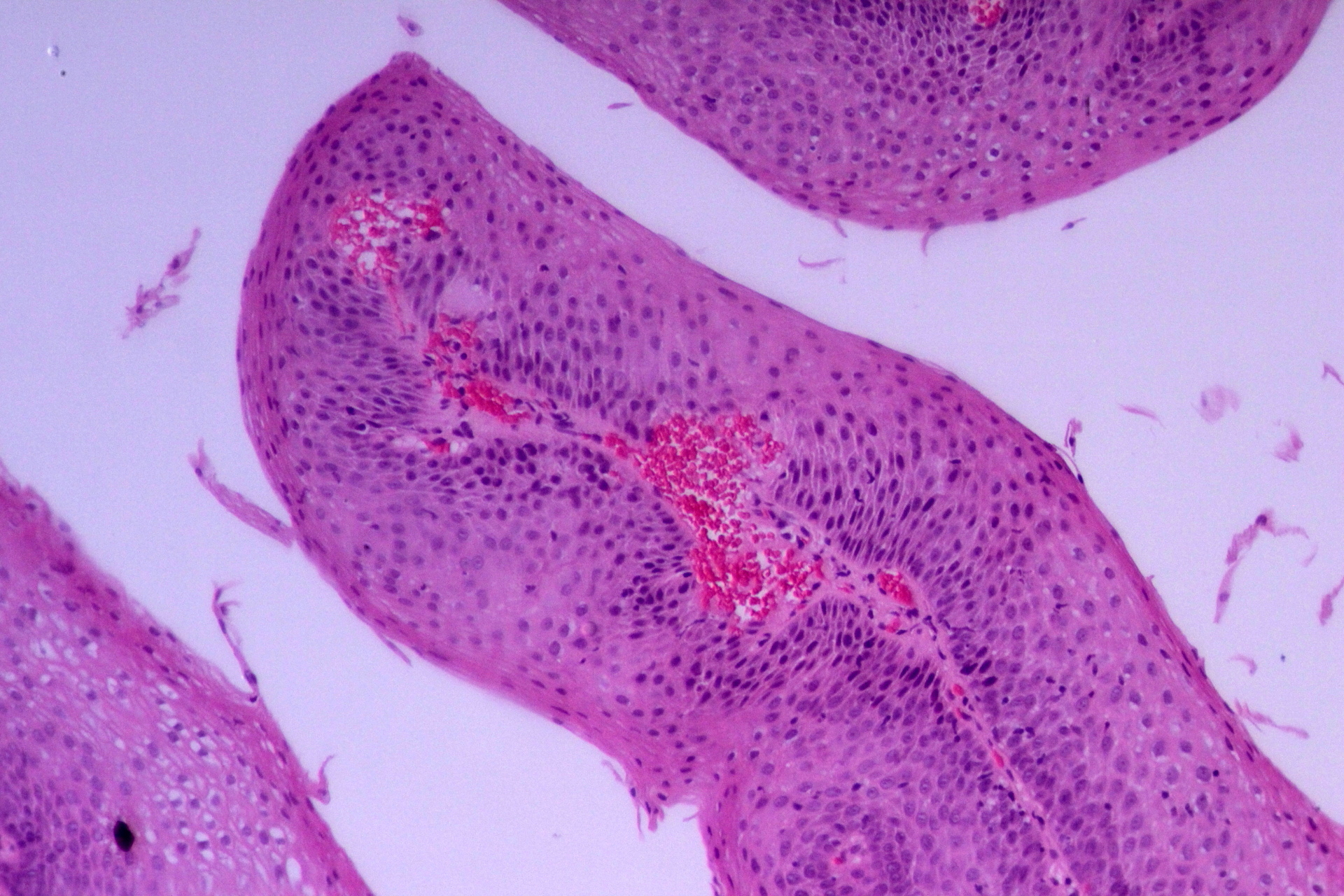 squamous papilloma esophagus histopathology)
