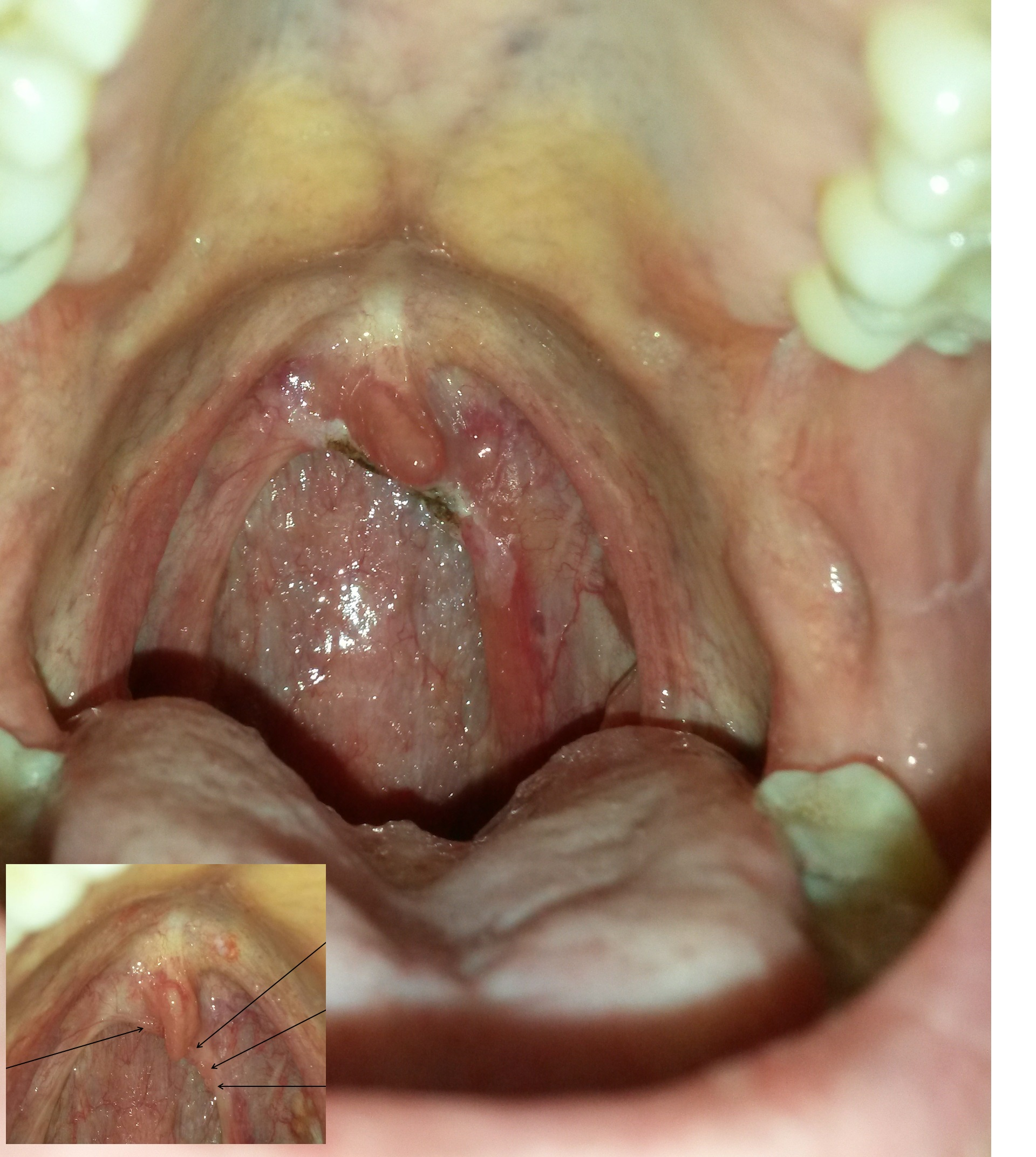 hpv tongue wart treatment