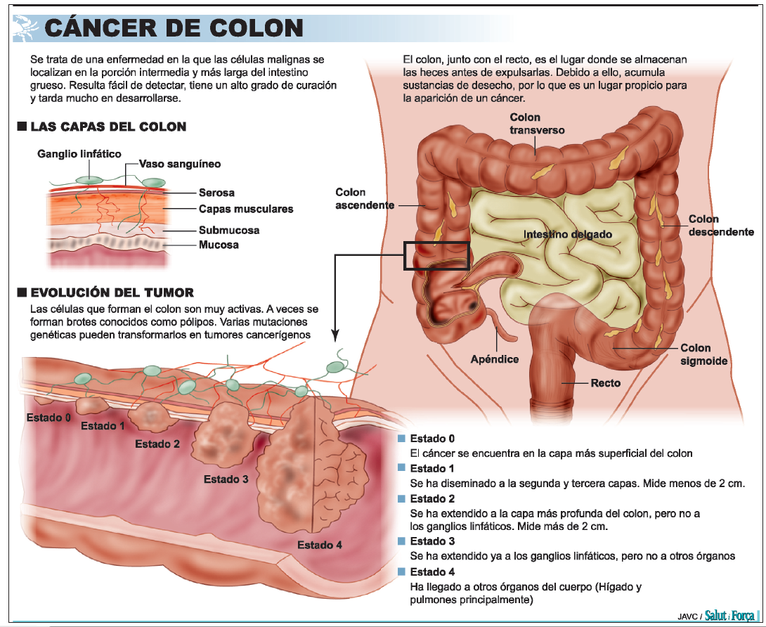 cancer de colon varsta