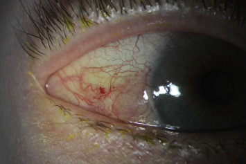 Papilloma in eye treatment