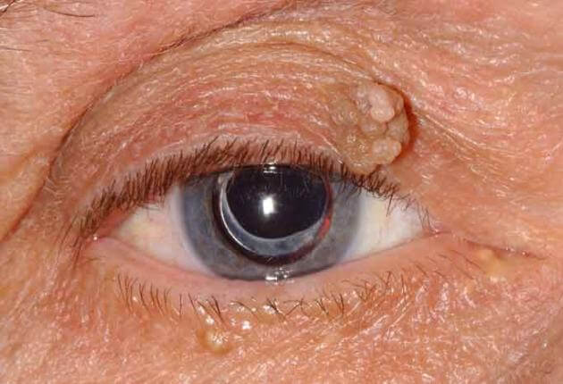 What is papilloma of the eye