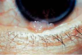 papiloma conjunctival)