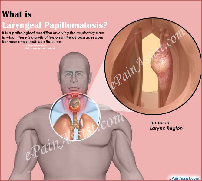 laryngeal papillomatosis medical definition)
