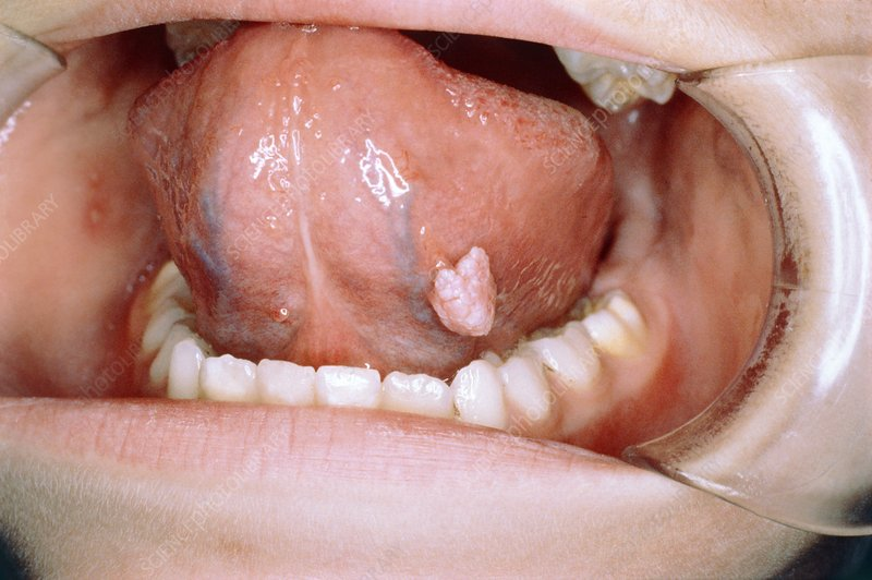 genital warts on tongue removal