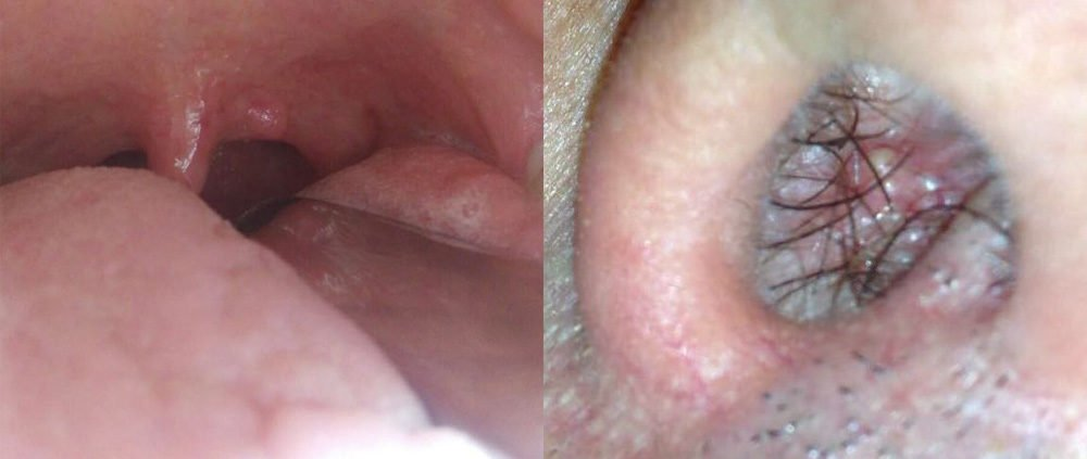 Warts on hands what causes it, Traducere