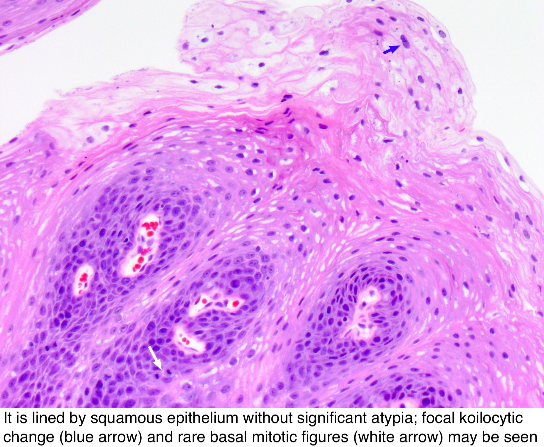 squamous papilloma with dysplasia)