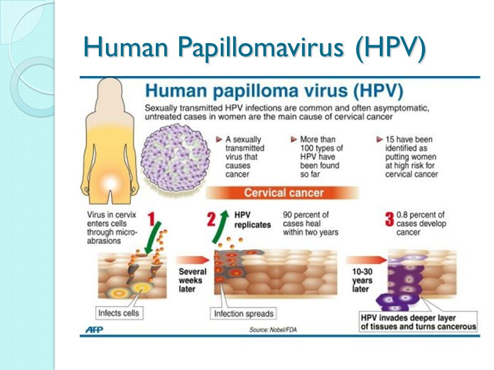 papilloma virus donne cause