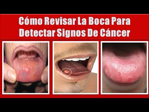 cancer bucal sintomas iniciales)