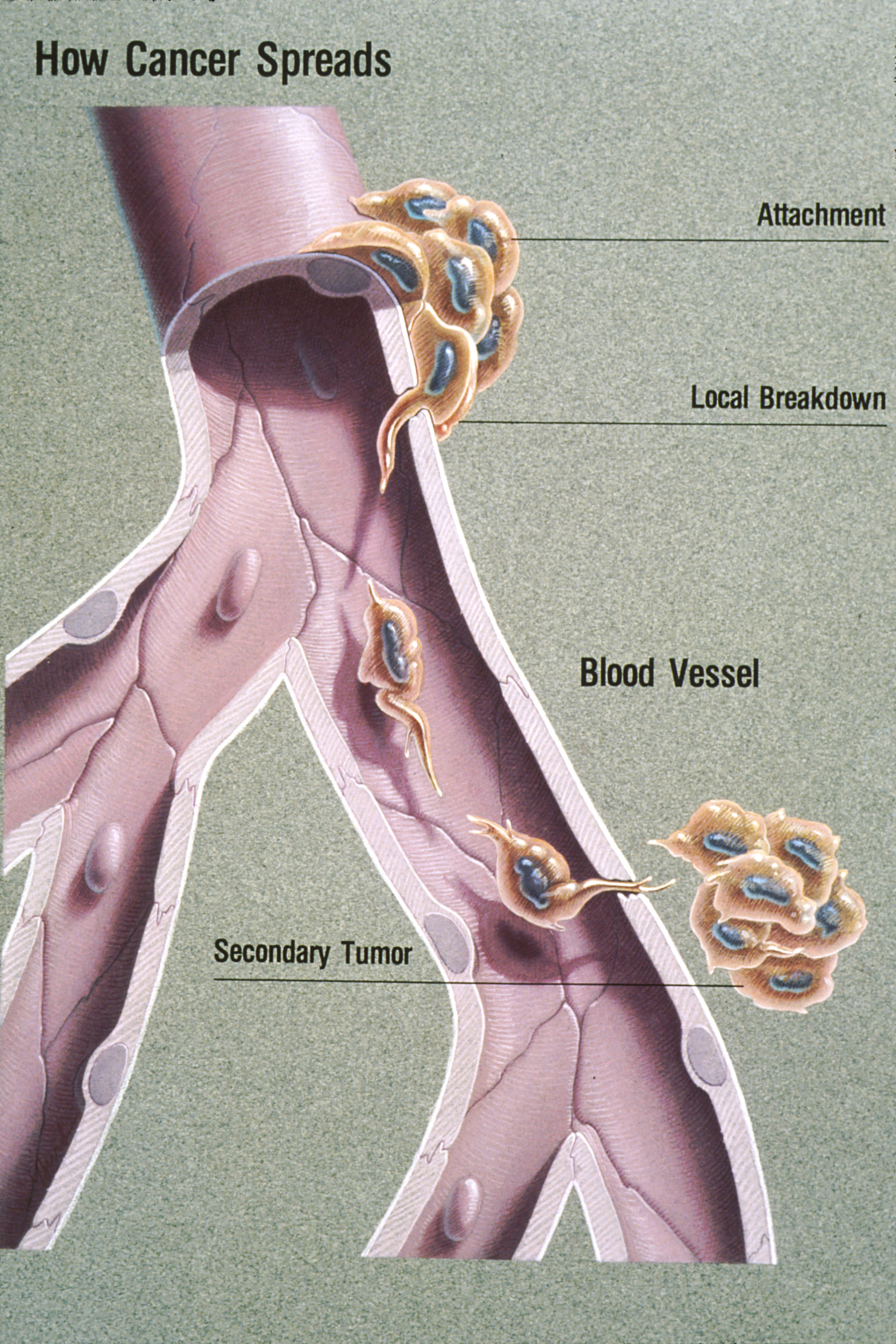 metastatic cancer and blood)