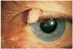 lid papilloma excision
