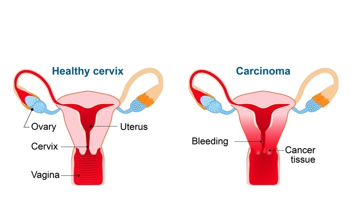 Will hpv cause ovarian cancer
