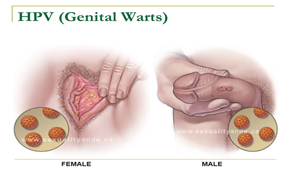 Hpv with warts cause cancer