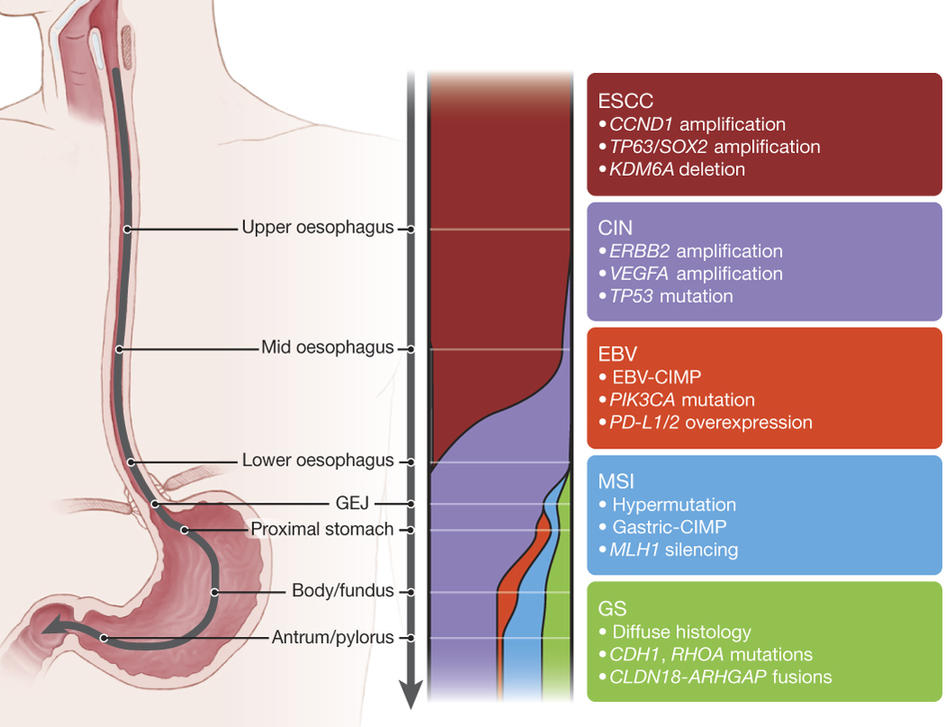esophageal cancer genetic predisposition