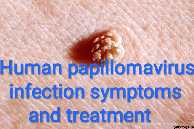 symptoms of human papilloma)