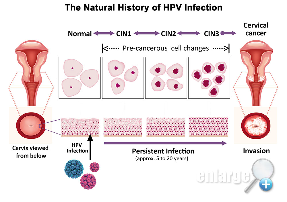 Hpv cancer cells cervix,