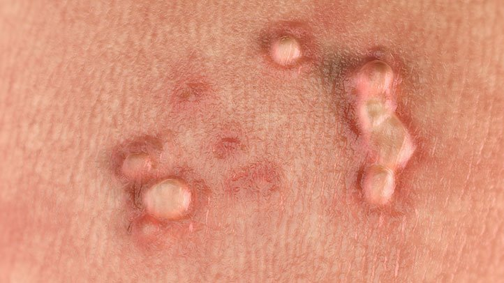 warts associated with papillomavirus)