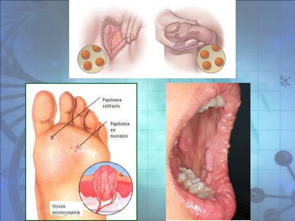 genital wart treatment cvs