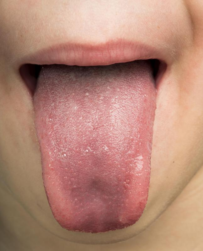 hpv tongue wart