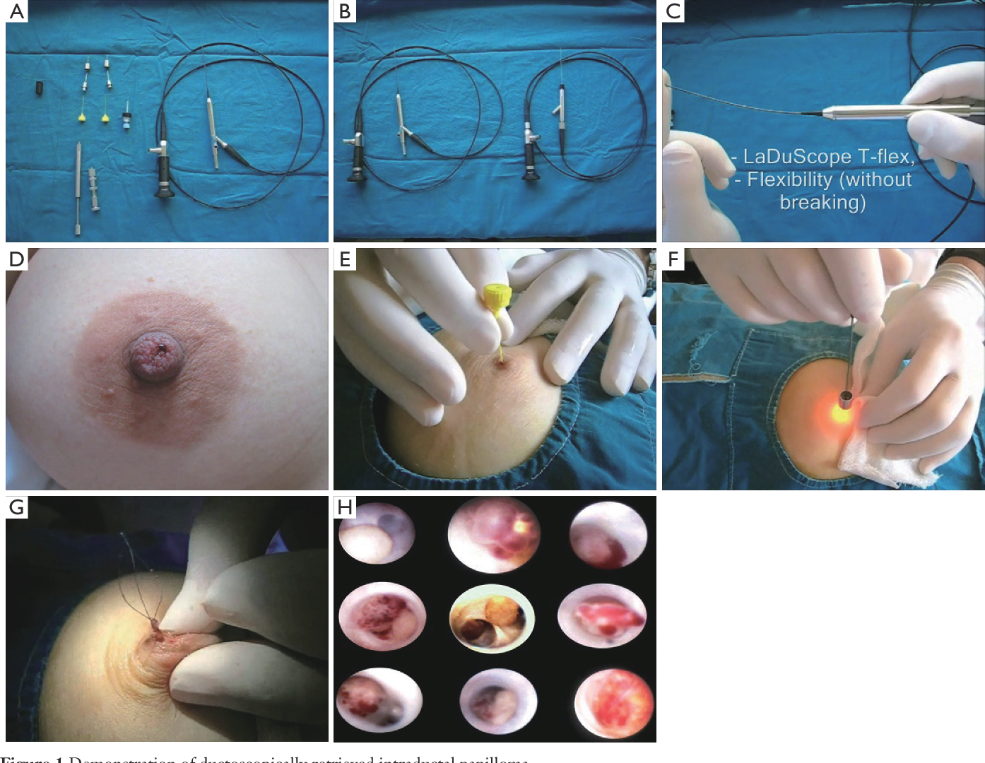 Intraductal papilloma surgical excision.