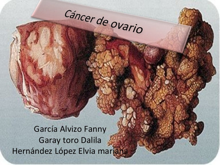 cancer peritoneal fase 4