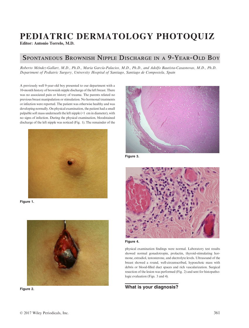 Hepatic cancer and hepatitis, Intraductal papilloma young