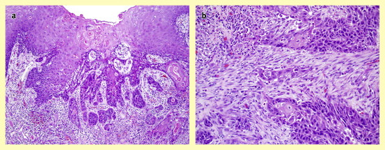 Human papilloma virus signs and symptoms. Nasal inverted papilloma histopathology