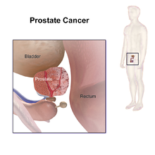 cancer epitelial de prostata)