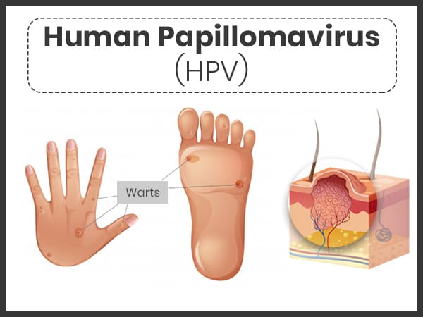 how do you get papillomavirus infection)