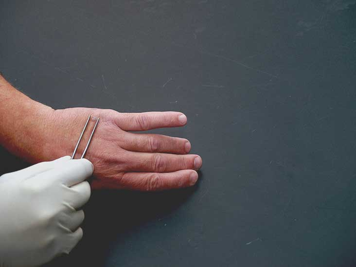 Warts on hands and arms. Traducere