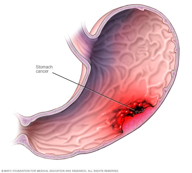 Gastric cancer of causes, Cancer gastric galopant | inearna
