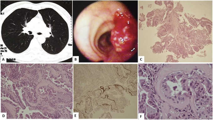 solitary glandular papilloma of the lung vestibular papillomatosis and warts