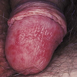 human papillomavirus infection genital