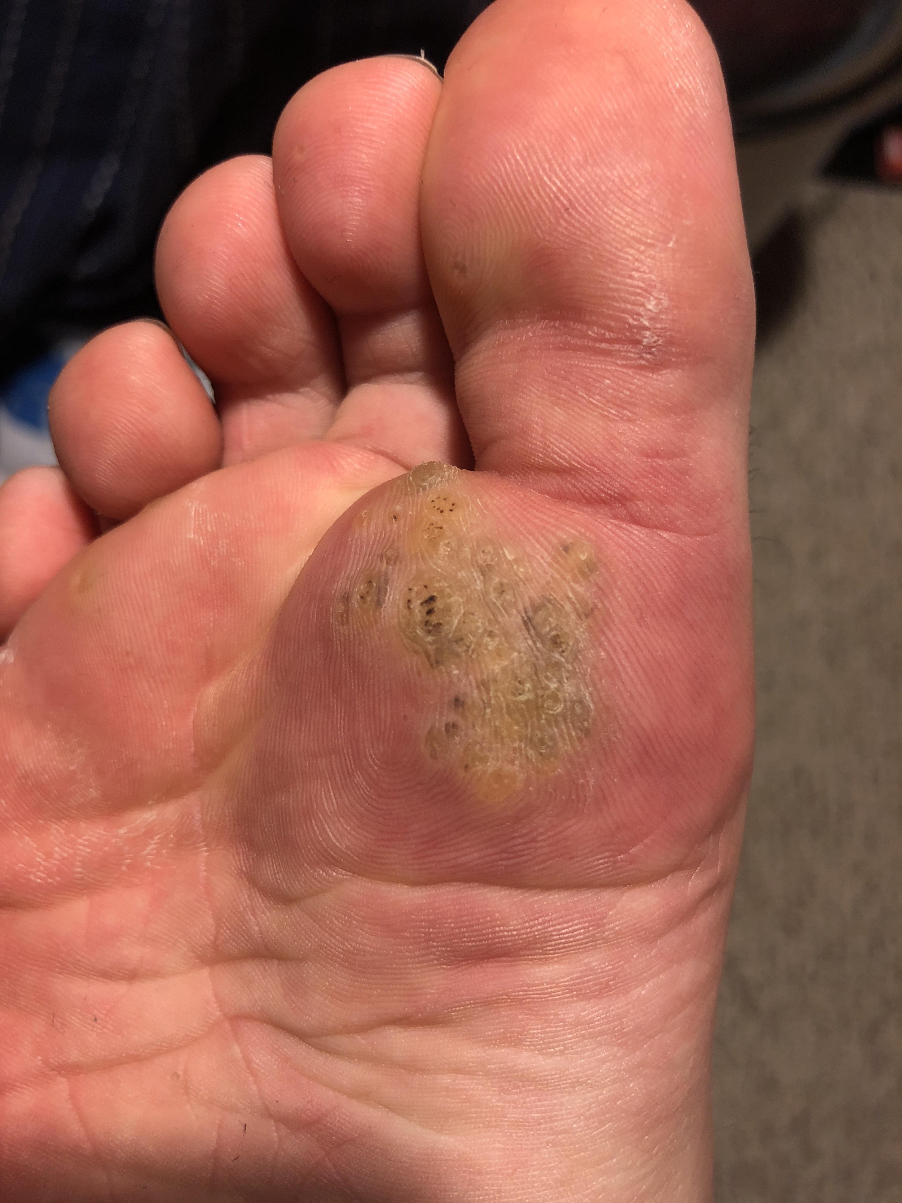 wart on foot black dots