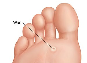 warts with foot)