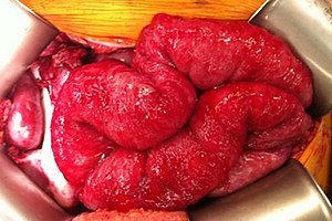 peritoneal cancer what is it