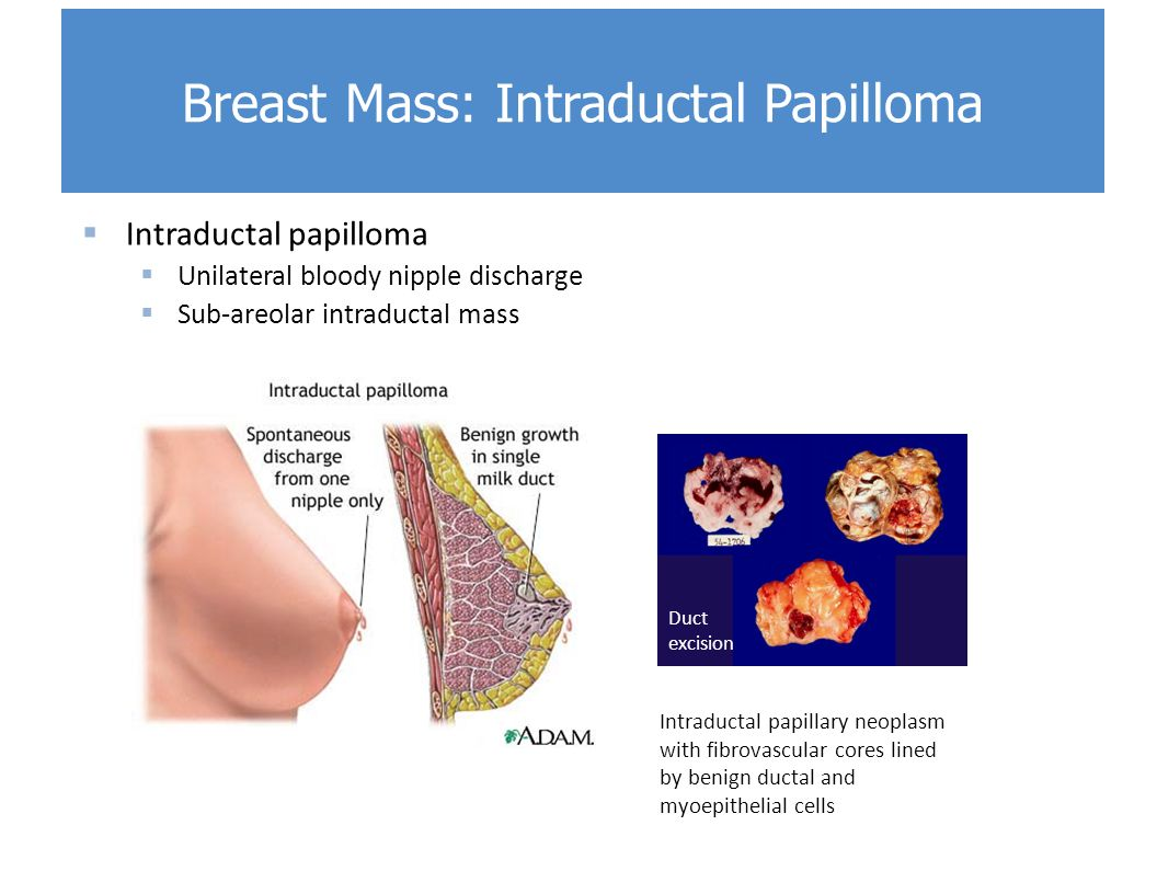 multiple ductal papilloma)