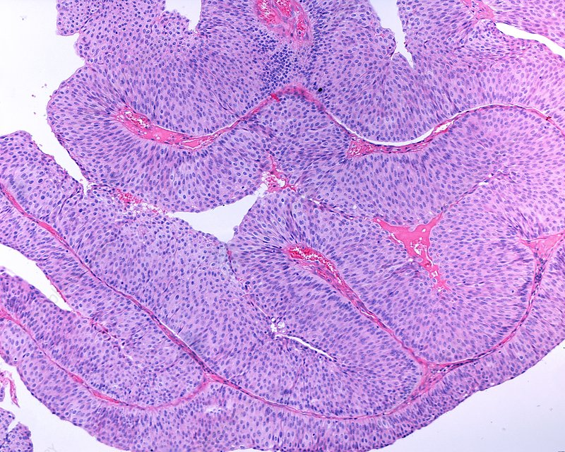 papilloma of urinary bladder
