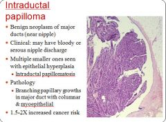 Intraductal papilloma in breast. REVIEW-URI