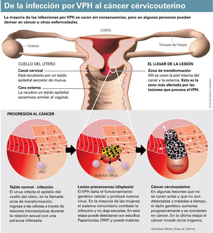 Que significa tener hpv positivo - Anthelmintic definition example