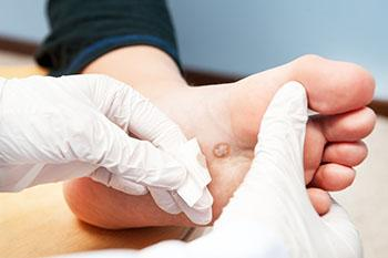 hpv foot treatment