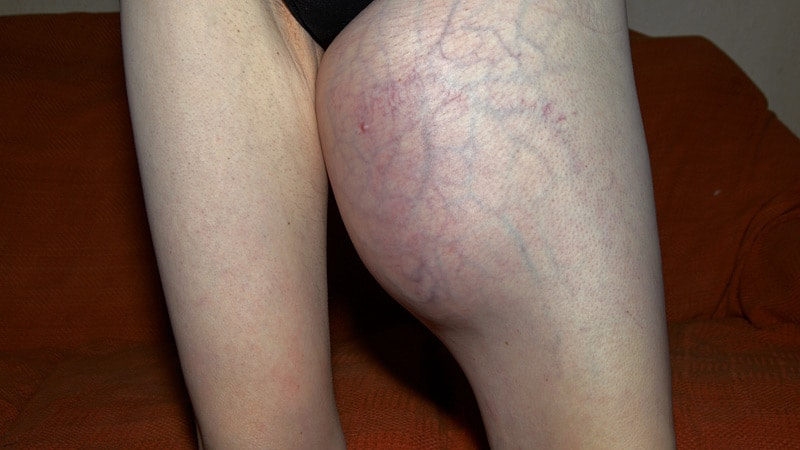 sarcoma cancer thigh)