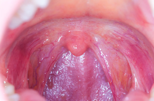 hpv infection throat cancer)