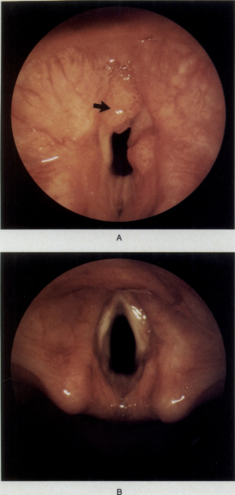 Recurrent respiratory papillomatosis causes - Inverted papilloma in nasal cavity