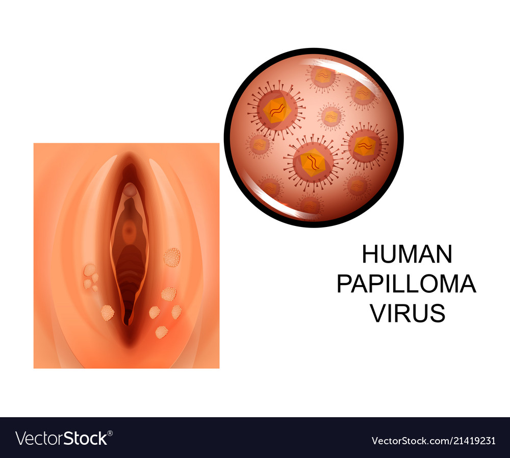 treatment of human papillomavirus virus)