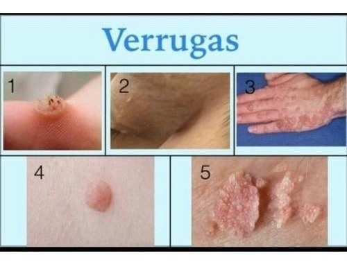 hpv e herpes wart treatment diy