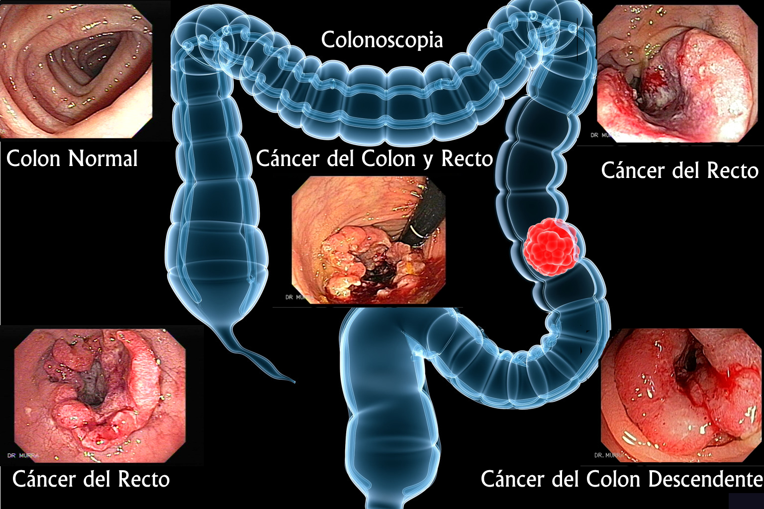 cancer de colon maligno